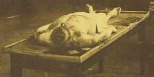Autopsiefoto des guillotinierten Kriminellen Canute Vromant, 1909. Digitale Sammlung Blazek